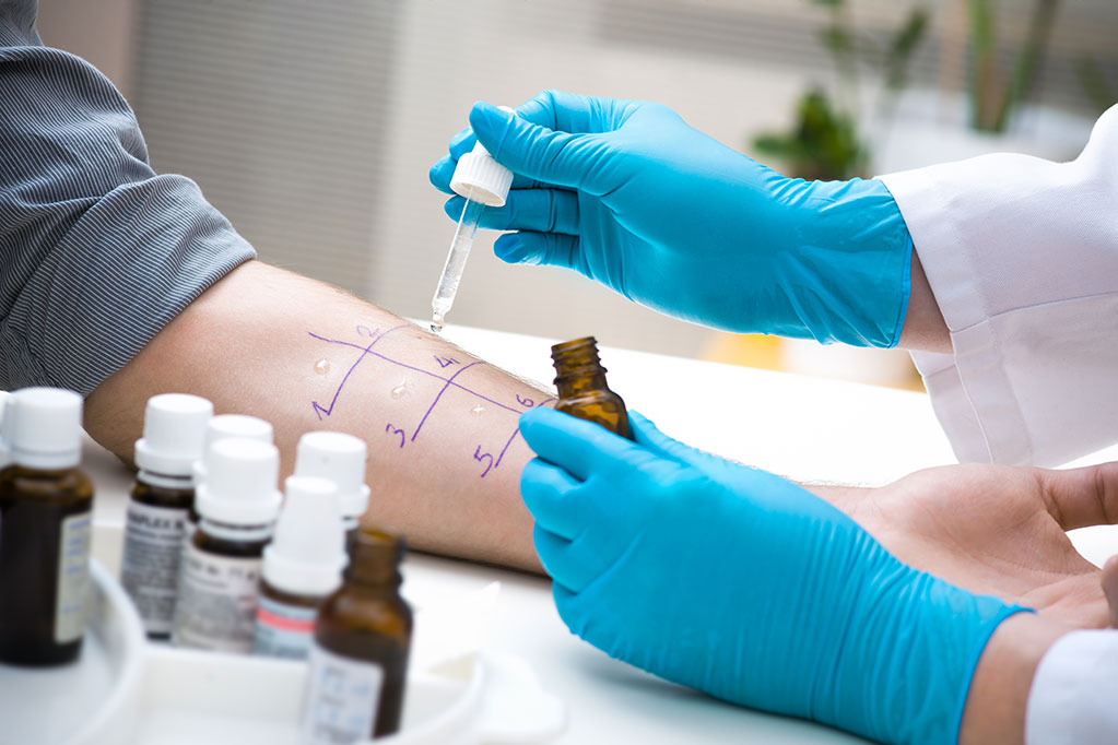 Allergy Testing, North Houston Family Medicine